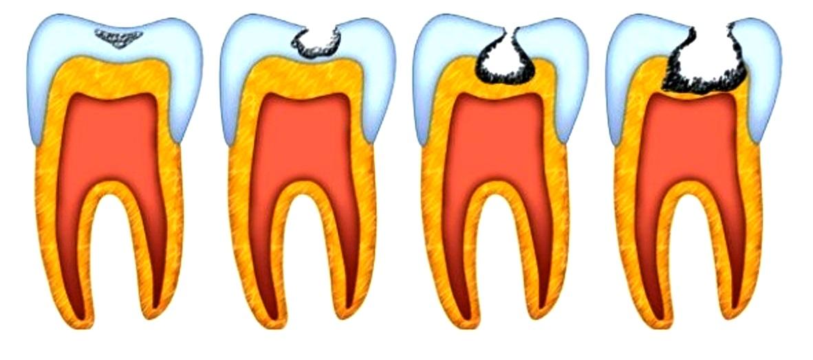 кариес зубов картинки для особенность том, что